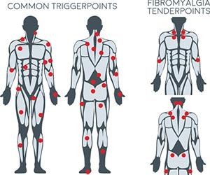 Chiropractic La Porte IN Trigger Points
